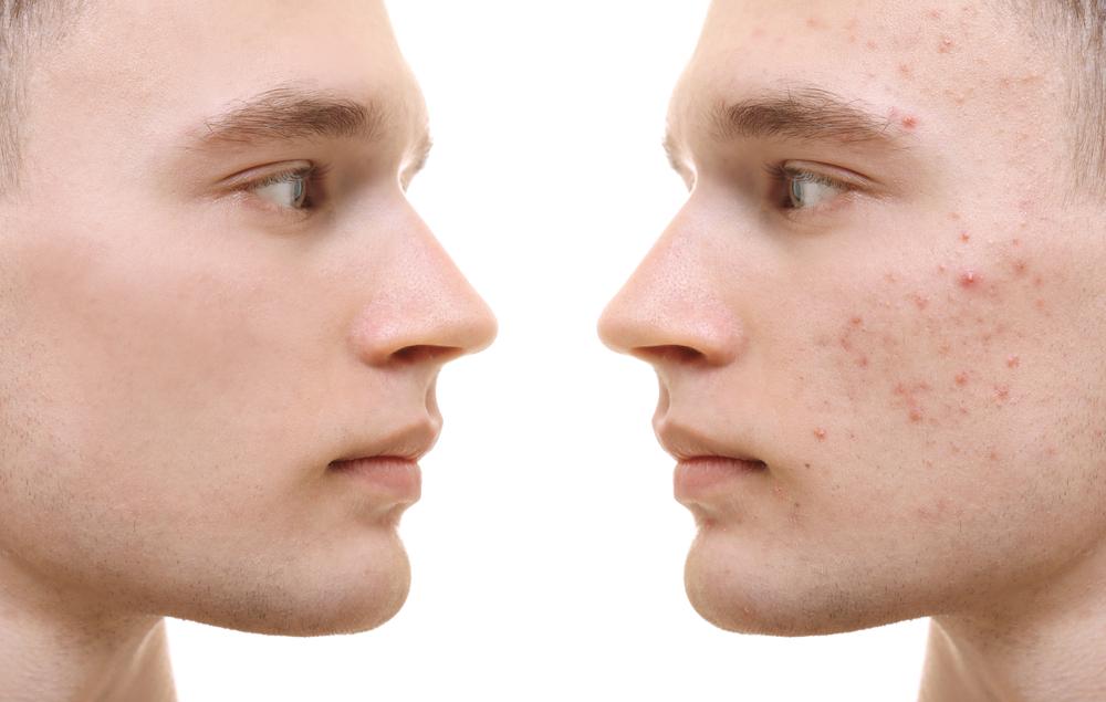 renovador celular para piel grasa