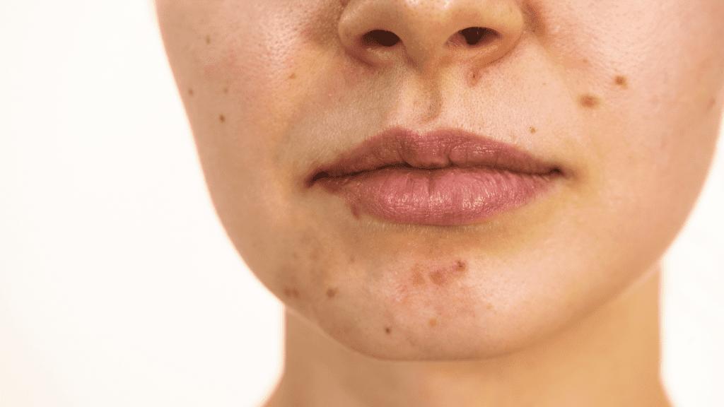 acné y como tratarla